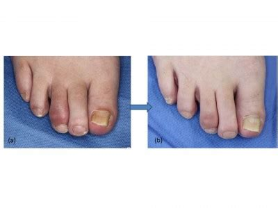 Optimal management of dactylitis in patients with