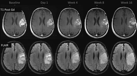 Pseudoprogression and Pseudoresponse: Imaging Challenges