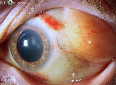 Pathology Outlines - Subconjunctival herniated orbital fat